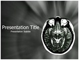 MRI PowerPoint Slides