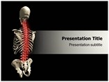 Animated Osteoporosis PowerPoint Theme