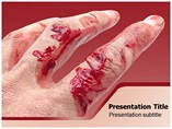Abrasion Powerpoint Template