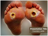 Diabetic Foot Powerpoint Templates