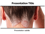 Lesions Powerpoint Template