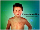 Measles Powerpoint Templates