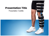 Fracture Powerpoint Templates