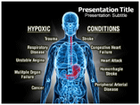 Powerpoint Templates on Hypoxic Conditions