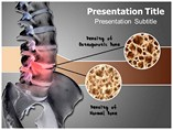 BONE DENSITY Powerpoint Templates