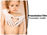 Smallpox powerpoint templates