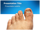 fungal disease Powerpoint Template