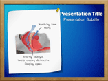 Sleep Apnea Syndrome Powerpoint Templates