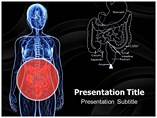 Colon Cancer PowerPoint Templates