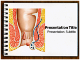 Hemorrhoids PowerPoint Templates