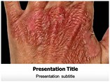 Burn Injuries Treatment Powerpoint Template
