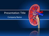Human Kidney Stone PowerPoint Template