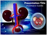 Renal Tumors PowerPoint Templates