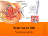 Free PPT Templates Download IUI Procedure
