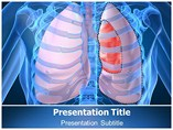 Pneumothorax Causes PowerPoint Slide