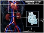 Cardiac Catheterization PowerPoint Background