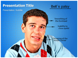 Palsy, Bells powerpoint template