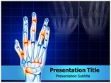 Hands Arthritis powerpoint template