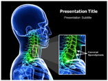 Cirvical Spondylosis powerpoint template