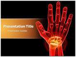 Carpal Tunnel Syndrome powerpoint template