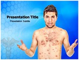 Chicken Pox powerpoint template