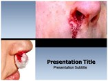 Epistaxis powerpoint template