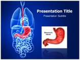 Stomach Ulcer powerpoint template