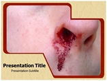 Nose bleed Medical powerpoint templates