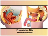 Prostate Cancer - Powerpoint Templates