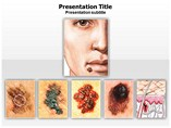 PPT Templates for Skin Cancer