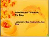 Best Natural Treatment for Acne powerpoint presentation
