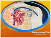 Pacemaker Surgery